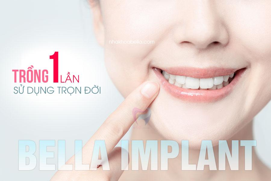 Trồng răng implant bao nhiêu tiền