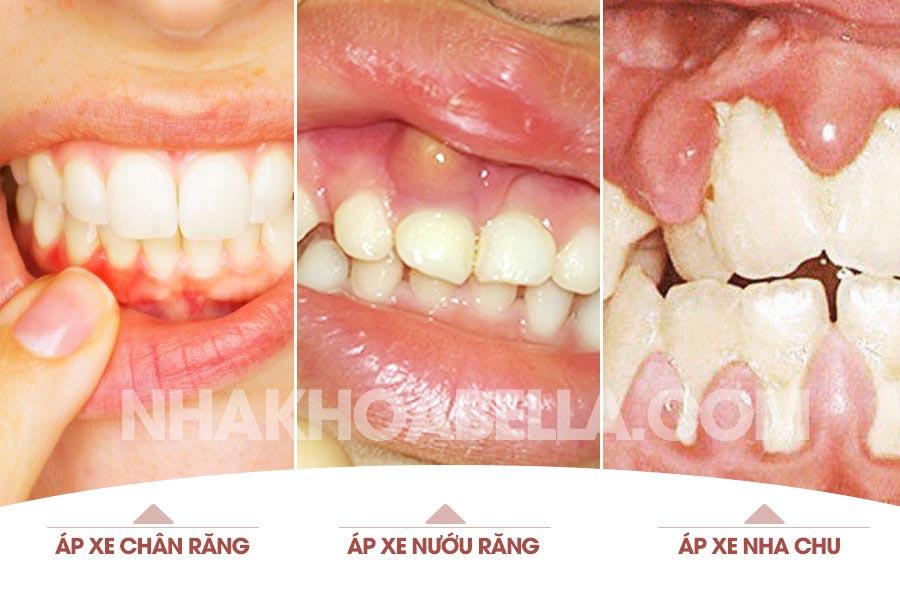 Áp xe răng nguy hiểm cần cảnh giác