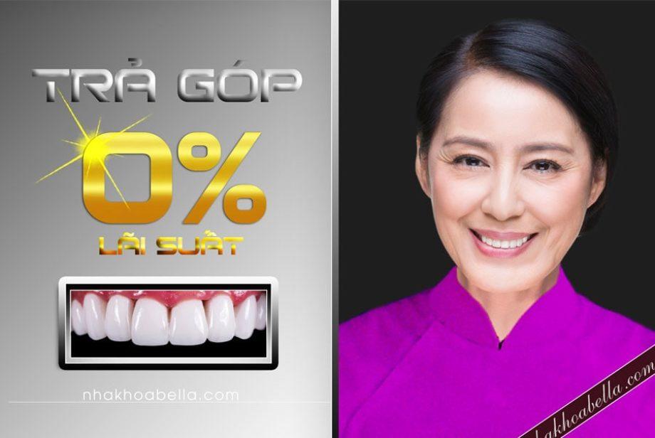Bọc răng sứ trả góp linh hoạt 0 lãi suất bảo hành chính hãng