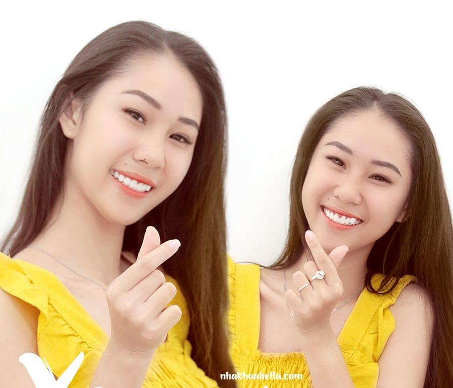 Bọc răng sứ trả góp không lãi suất