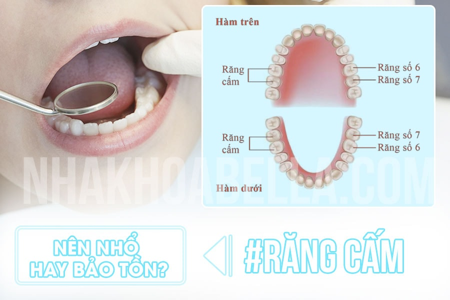 Nho Rang Cam Bao Nhieu Tien (2)