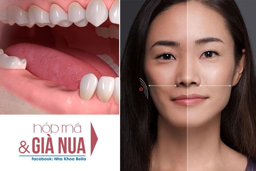 nhổ răng cấm có nguy hiểm không