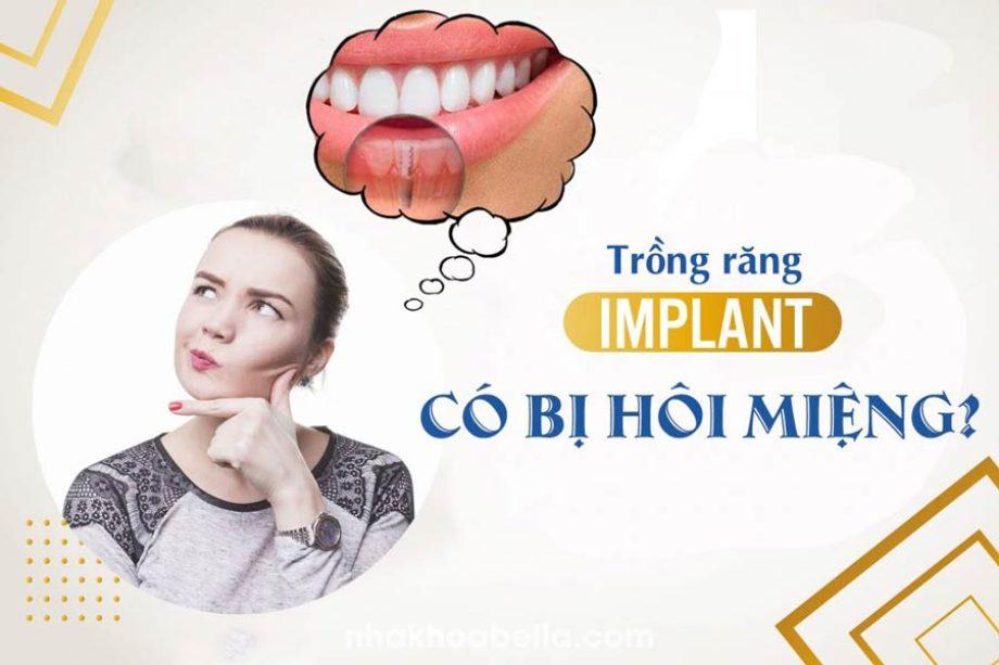 Trồng răng implant có bị hôi miệng không, bác sĩ CKI giải đáp